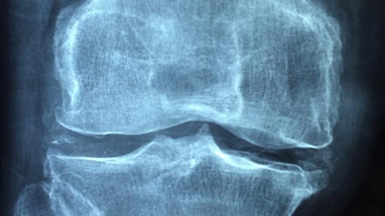Osteoporoza: co warto wiedzieć?